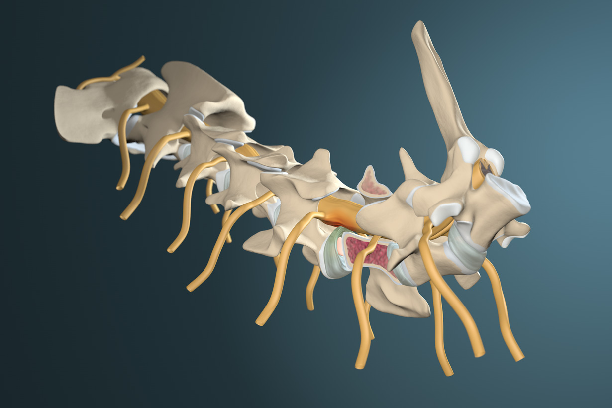 Canines Wobbler Syndrom mit Schnittbild des Wirbelknochens C6 und den Rückenmarksnerven. 3d medical visualization of a dog's spondylomyelopathy made with cinema 4d.
