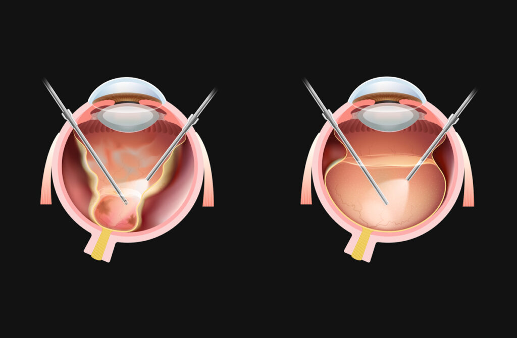 Medizinische Illustrationen für den Ophthalmologie Beitrag von Dr. Med. Vet. Katrin Voelter zum Thema Vitrektomie beim Auge des Hundes.